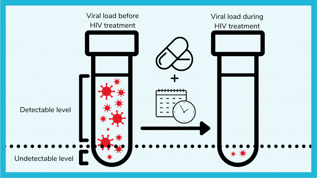 HIV virus is suppressed to undetectable levels with time plus medication